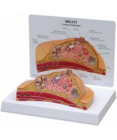 3B anatomisk modell av bryst